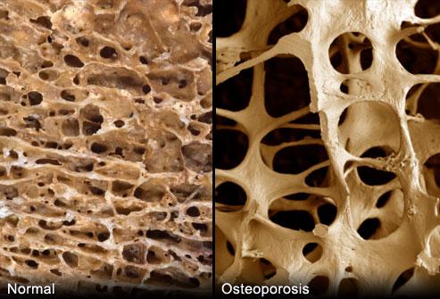 NormalversusOsteoporotic bone