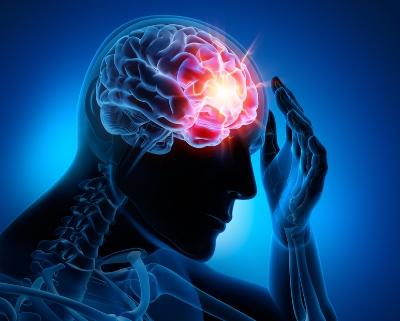 Debilitating migraine.