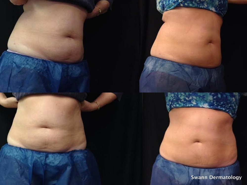 Coolsculpting1.jpg