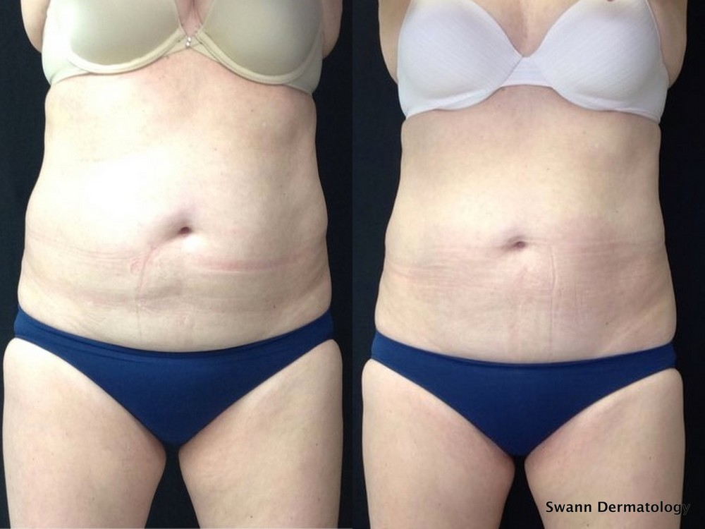 Coolsculpting3.jpg