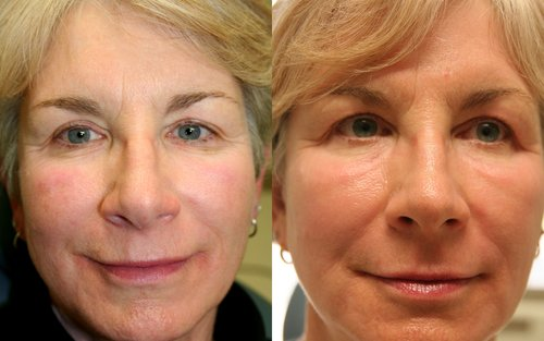 ede9f410edbb Laser Resurfacing CO2 Laser — Swann Dermatology