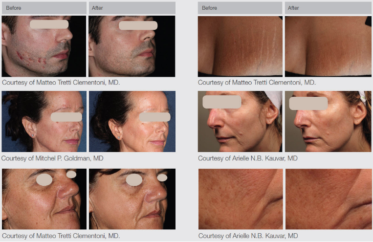 Before and after treatment wth Lumenis ResurFX 1565nm non-ablative fractionated laser.