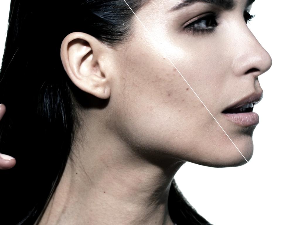 Skin Demo
