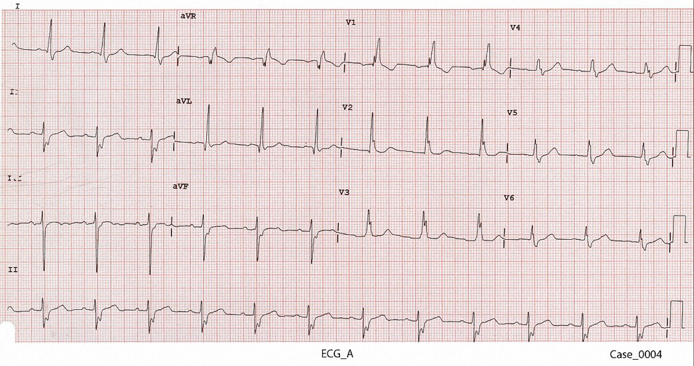 Figure 1. ECG_A taken 6 months before the current presentation