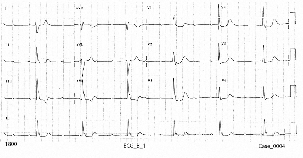 Figure 2. ECG_B_1 taken on arrival at 1800