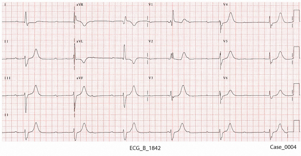 Figure 3. ECG_B_2 taken on arrival at 1842