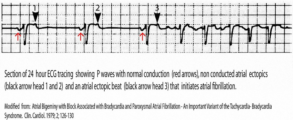 Example of non conducted atrial bigeminal ectopic beats that produce a slow ventricular rate and initiate atrial fibrillation