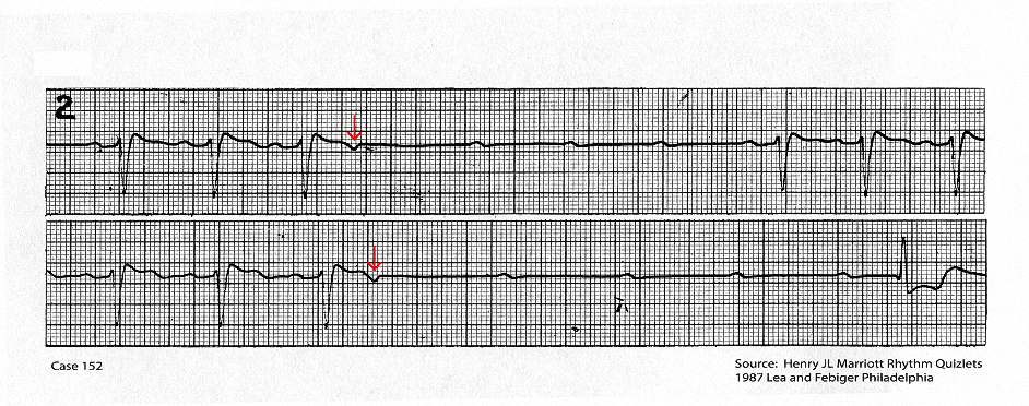 Continuous tracing showing two non conducted atrial ectopic beats (red arrow) that are followed by a short period of AV block and ventricular asystole.