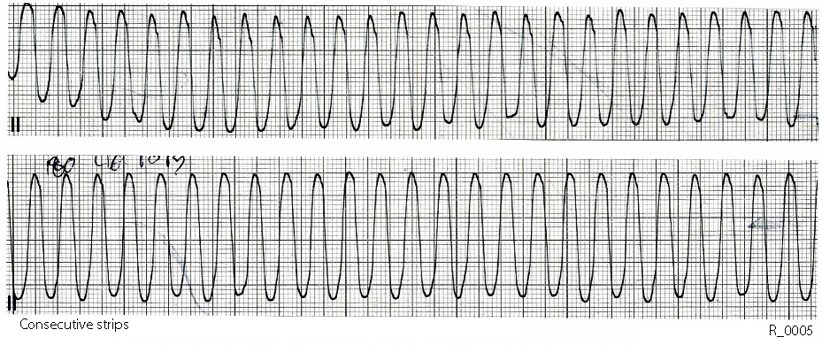 Describe the ECG changes and the rhythm in Case R_0005