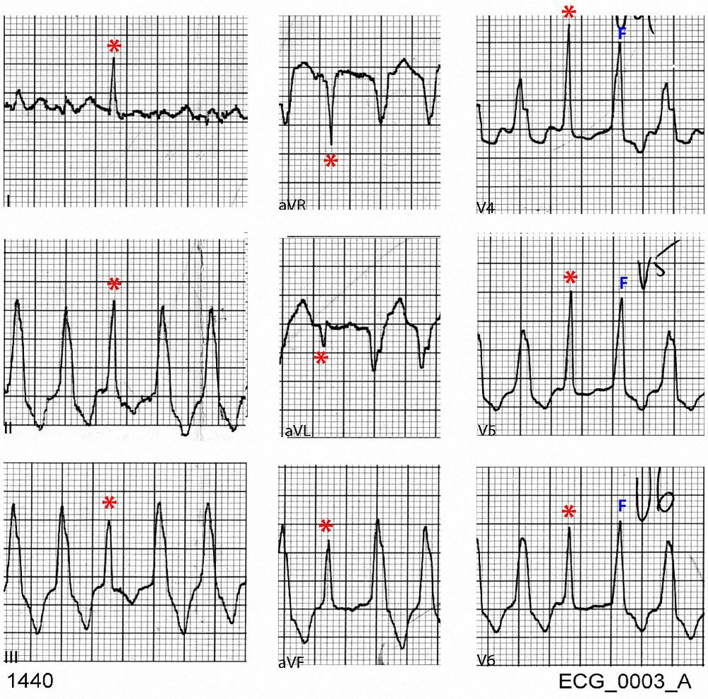 Selected leads from ECG_0003_A showing capture beats (red asterisk) and fusion beats (F)