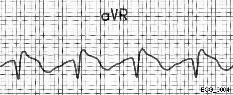 Magnified view of aVR from ECG_0004