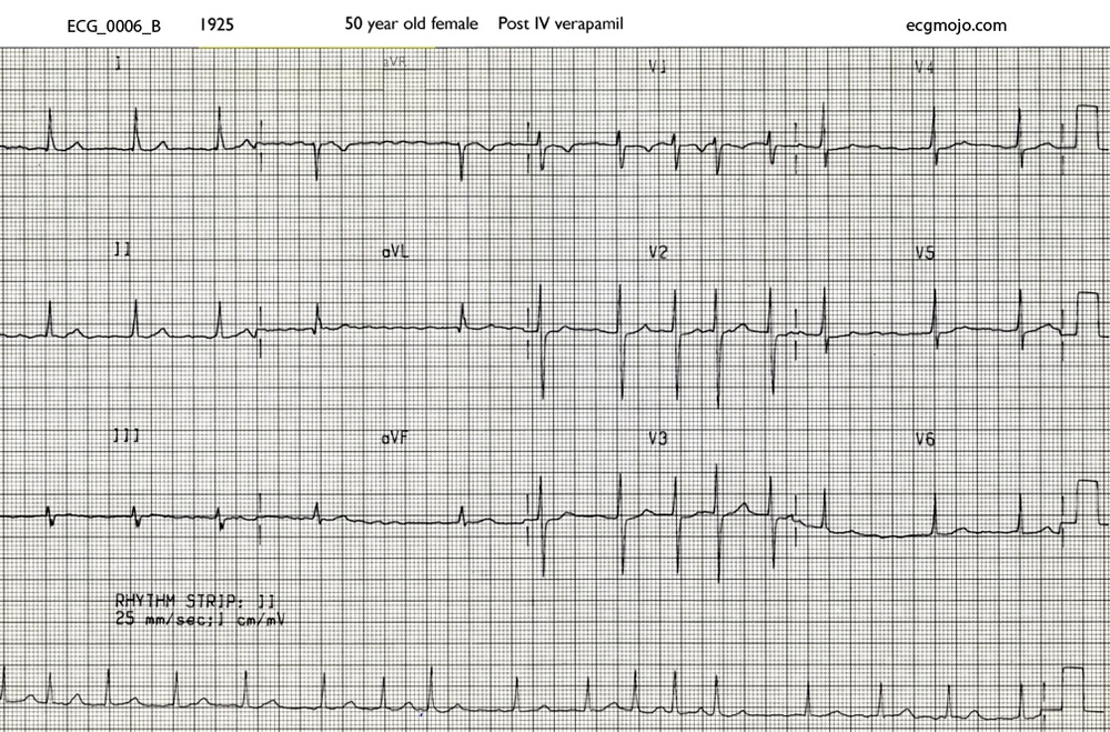 ECG at 1925 after the patient had been treated with intravenous verapamil
