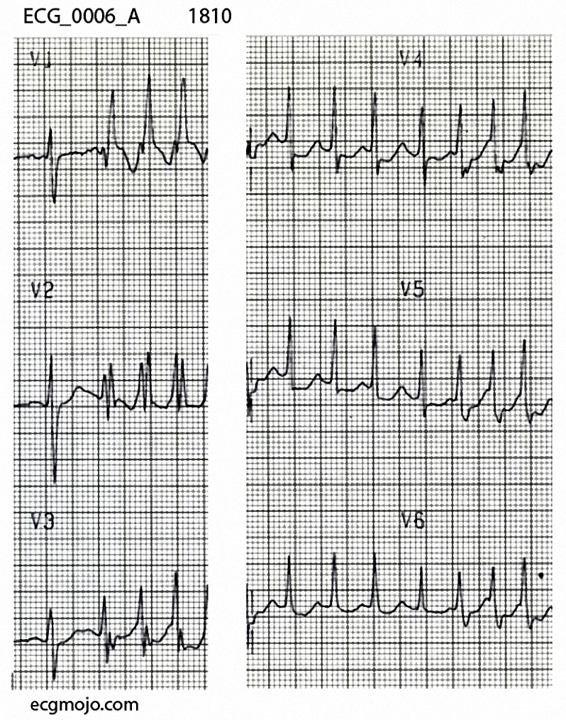 The initial QRS complexin V1 to V3 has normal morphology, but the next three complexes have a right bundle branch block pattern that is consistent with  rate related aberrant conduction.