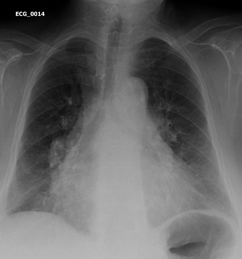 Figure 1. Chest Xray of Case ECG_0014