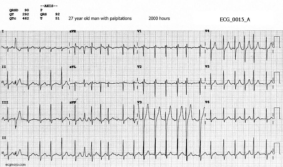 Figure 1. ECG_0015_A