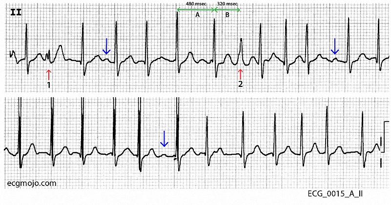 Figure 3. Rhythm stipfrom ECG_0015_A