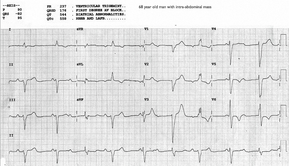 Figure 2. ECG of Case C_0002