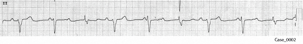 Figure 3. Rhythm strip of C_0002
