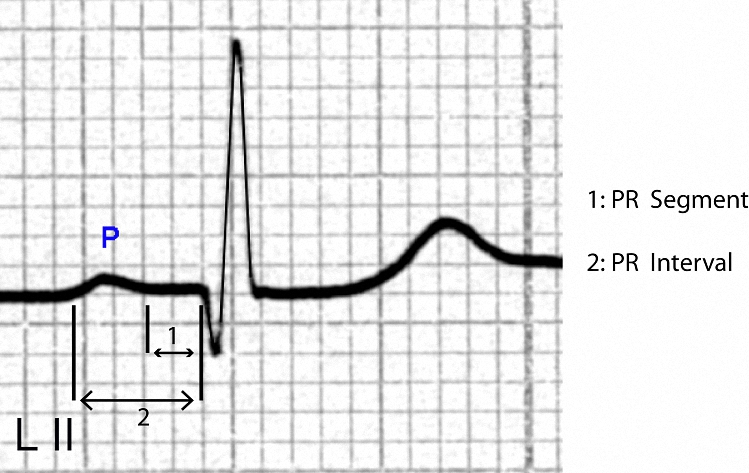 Figure 3. Single P - QRS complex showing a normal P wave (upright,  width 0.10 seconds, height less than 1 mm) that precedes a qR complex with a normal ST segment and a normal T wave. The PR interval is about 0.18 seconds, and the PR segment is horizontal.
