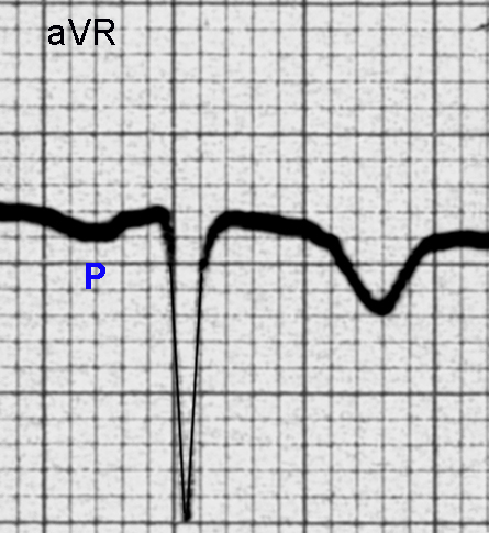Figure 4. Single P - QRS complex in Lead aVR showing an inverted P wave, a deep Q wave and an inverted T wave.