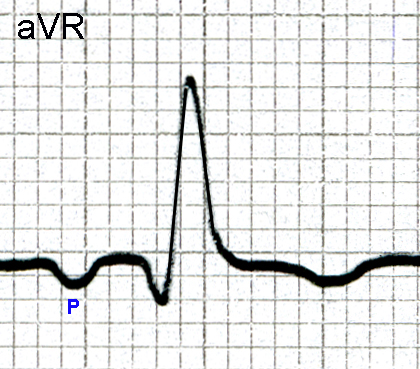 Figure 5. Single P - QRS complex in Lead aVR showing an inverted P wave, a qR complex, and an inverted T wave.