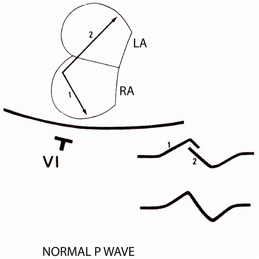 Figure 6. This shows the contribution of right atrial depolarization (Arrow 1 in RA) and left atrial depolarization (Arrow 2 in LA) to the formation of a biphasic P wave in Lead V1
