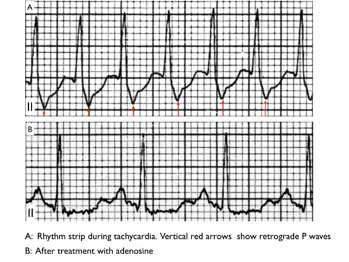 Figure 9.  Rhythm strips (Lead II) in a case of supraventricular tachycardia (SVT) during and after the tachycardia. (A): Inverted P waves are seen immediately after every QRS complex during the SVT;  (B): P waves precede every QRS complex during sinus rhythm
