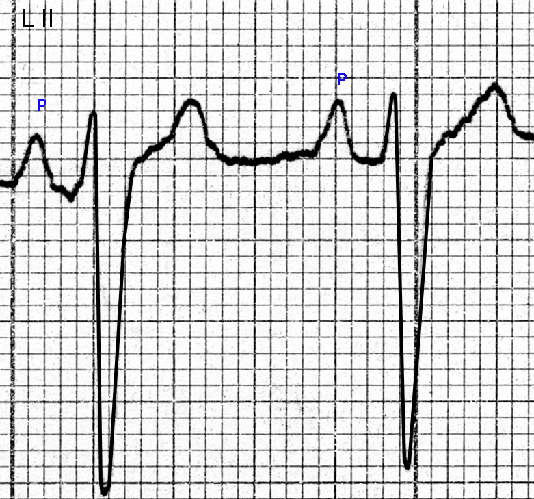 Figure 12.  P wave changes of right atrial enlargement are seen in Lead II. The isoelectric line slopes slightly upwards to the right.  The second P wave has a width of about 0.10 seconds, a height of about 3.5 mm, and a pointed tip. The PR interval is about 0.18 seconds. The rS shape of the QRS complexes suggests the presence of left axis deviation.