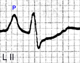 Figure 13. P wave changes of right atrial enlargement are seen in Lead II. The P wave has a width of about 0.12 seconds,  a height of nearly 3 mm and a pointed tip.  The PR interval is about 0.16 seconds. The QRS complex has a RS shape, but the complex is small (the vertical height is about 6 mm) compared to the P wave amplitude. The J point is depressed, and there is upward sloping ST depression and a flattened T wave.