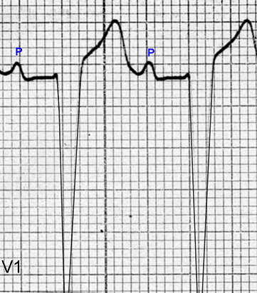Figure 14. P wave changes of right atrial enlargement are seen in V1. The P waves have an initial positive deflection that is 2 mm in amplitude and are followed by a very shallow negative deflection. The PR interval is about 0.24 seconds,  the QRS duration is about 0.14 seconds, and the QRS complexes have a rS configuration with a deep S wave (amplitude of at least 25 mm below the isoelectric line).