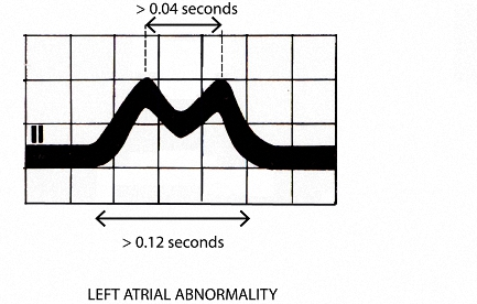 Figure 15. P wave changes of left atrial abnormality in Lead II
