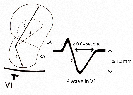 Figure 16. P wave changes of left atrial abnormality in Lead V1