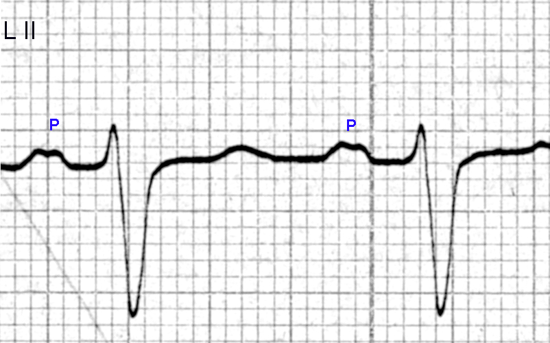 Figure 17. P wave changes of left atrial enlargement are seen in Lead II. The P wave duration is 0.14 seconds, with a notched peak and an inter-peak distance of about 0.06 seconds.  The PR interval is 0.20 seconds, with a rS configuration and a QRS duration of 0.16 seconds.