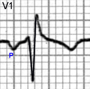 Figure 18. P wave changes of left atrial enlargement are seen in Lead V1. There is an inverted P wave with a width of about 0.06 seconds and a depth of 1 mm.