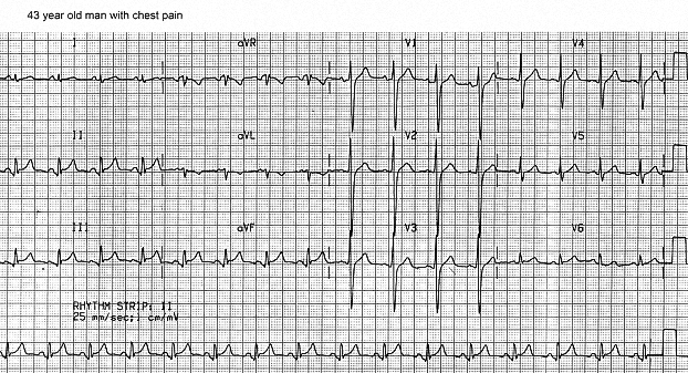 Figure 19. ECG of 43 year old man with chest pain. There is ST elevation in Leads II, III, aVF and V6. PR segment depression is present in the inferior leads, and PR segment elevation is seen in Lead aVR