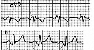 Figure 20. Lead aVR and Lead II from the ECG in Figure 19, with arrows showing the PR segment changes.