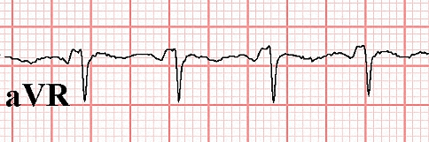 Figure 22. PR segment elevation in Lead aVR in the same patient in Figure 21.