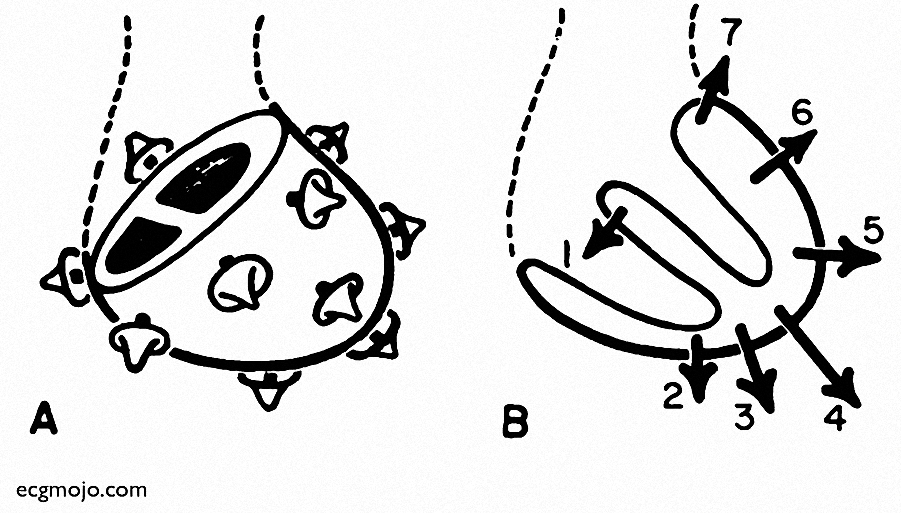 Figure_2. Ventricular depolarization in the frontal plane. Modified from Grant R.P. Spatial Vector Electrocardiography. Circulation. 1950; 2: 676 - 695