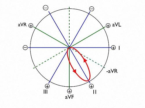 Figure 6. Ventricular depolarization shown as a narrow ellipse.
