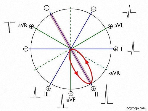 Figure_7. The QRS complexes produced by normal ventricular depolarization vector (red ellipse)