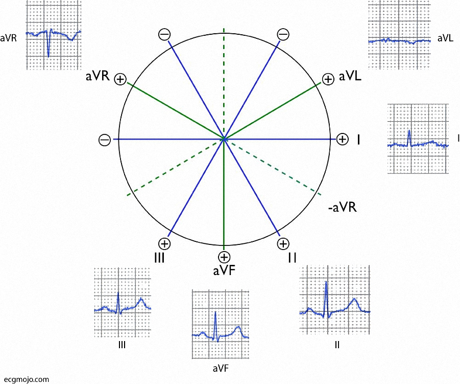 Figure_8. Frontal lead complexes from a normal ECG