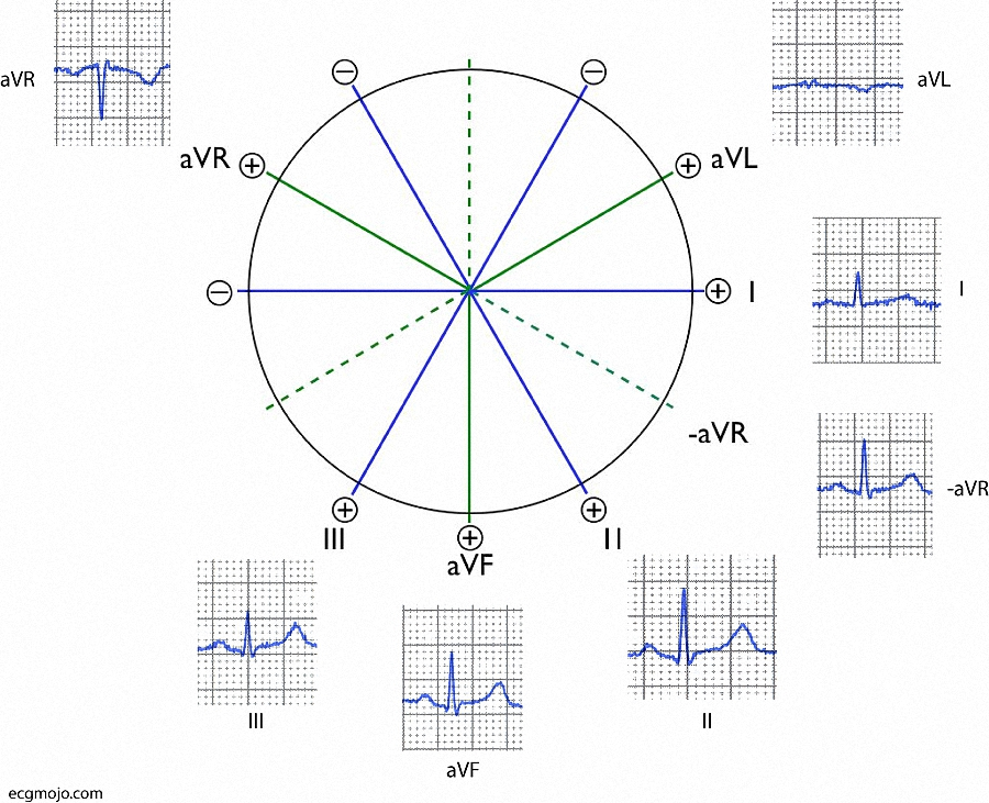Figure 9. The Cabrera frontal lead arrangement