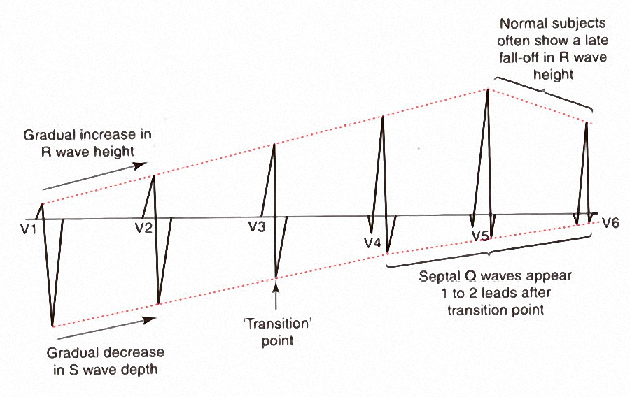 Figure_12. Changes in the V leads of a normal ECG
