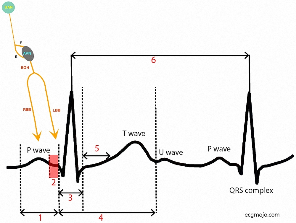 Figure_7. The spread of depolarization from the SAN to the Pukinje system is shown in the left upper part of the figure. The contribution of this process to the normal PQRST complexes is also shown.   Abbreviations: SAN. Sinoatrial node; AVN. Atrioventricular node; F. Fast conduction pathway that joins the AVN; S. Slow conduction pathway that joins the AVN; BOH. Bundle of His; RBB. Right bundle branch; LBB. Left bundle branch;   1. PR interval; 2. PR (PQ) segment; 3. QRS complex (and QRS duration); 4. QT interval; 5. ST segment; 6. R-R interval
