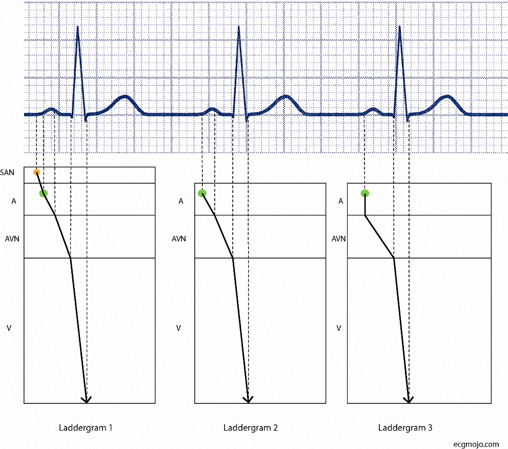 Figure_11. The bottom of the dotted lines in each laddergram are connected; the resulting solid line (with an arrow at the bottom of the ventricle tier) shows the depolarization sequence in the different parts of the heart.