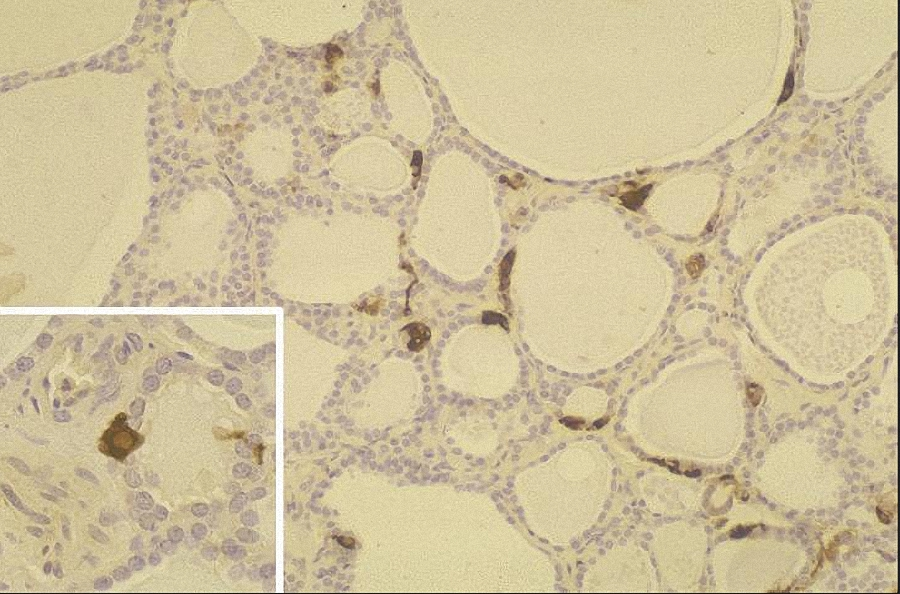Figure_2.  The parafollicular cells are stained brown