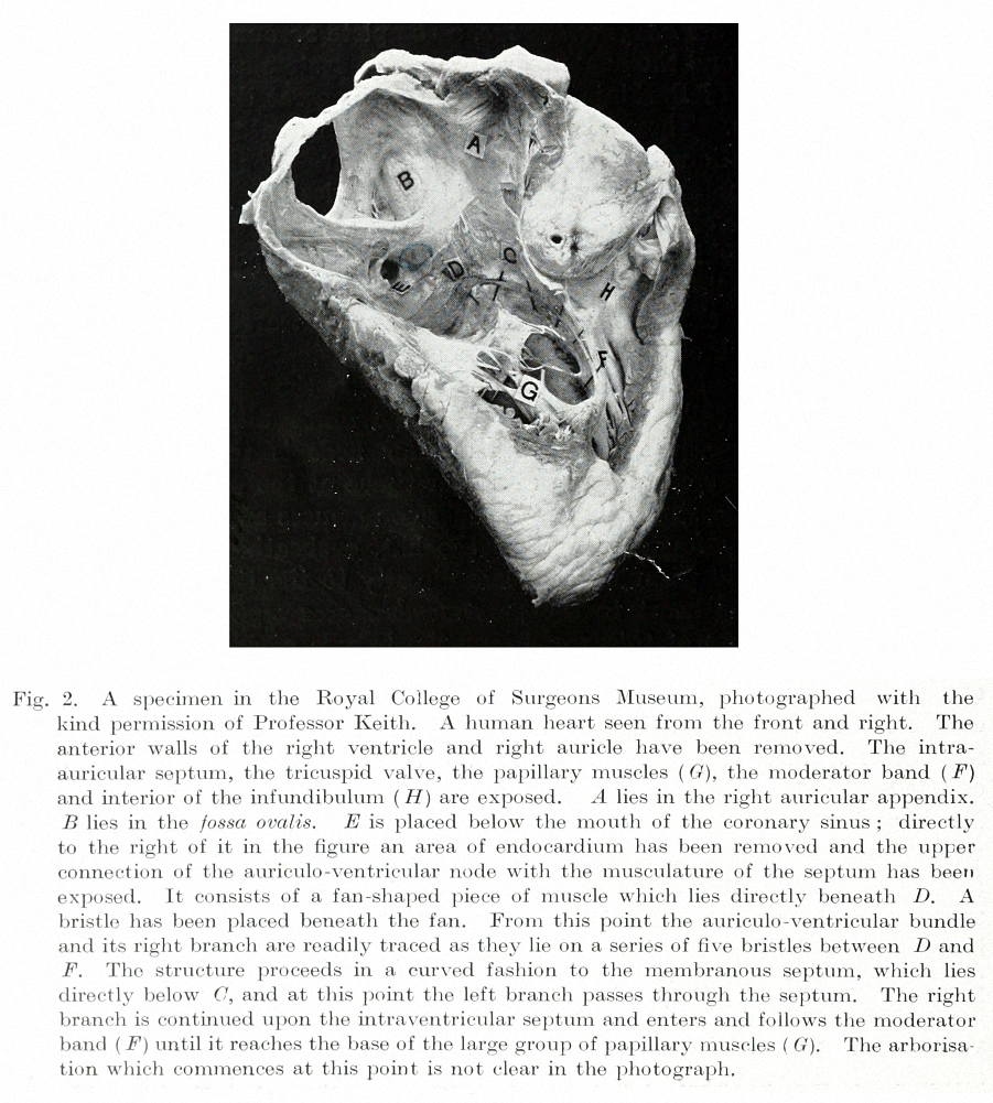 """Figure 9: The atrioventricular node, the bundle of His and the right bundle branch are shown in a dissection of a human heart. This illustration is from """"The Mechanism of the Heart Beat""""."""