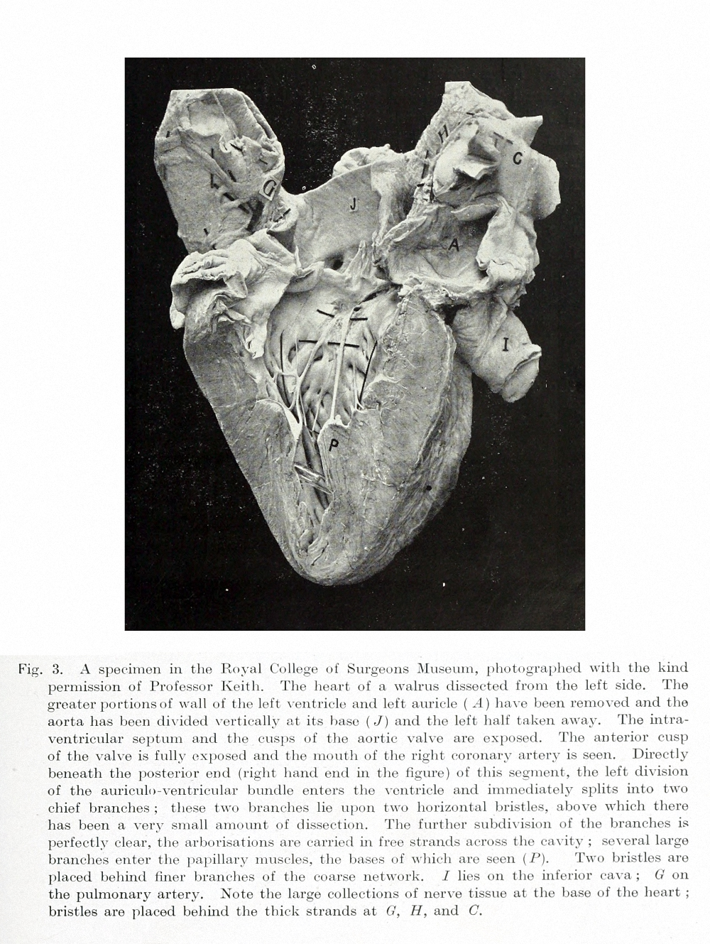 "Figure 10: The left bundle branch and its divisions are shown in a dissection of a walrus heart. This illustration is from ""The Mechanism of the Heart Beat""."
