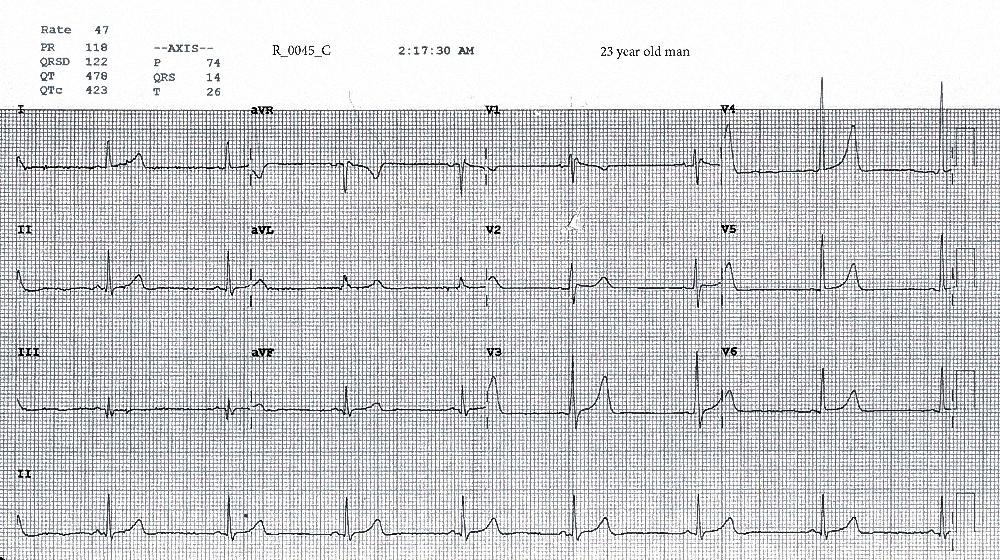 Figure 4. ECG taken at 0217