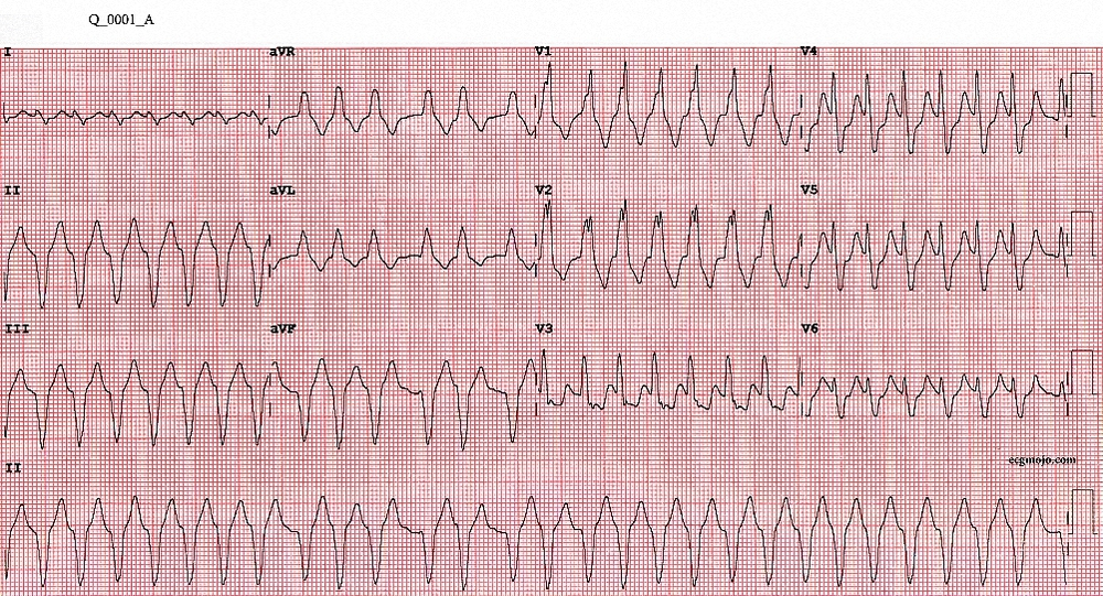 Question 1A: Palpitations and dyspnoea in a 84 year old woman